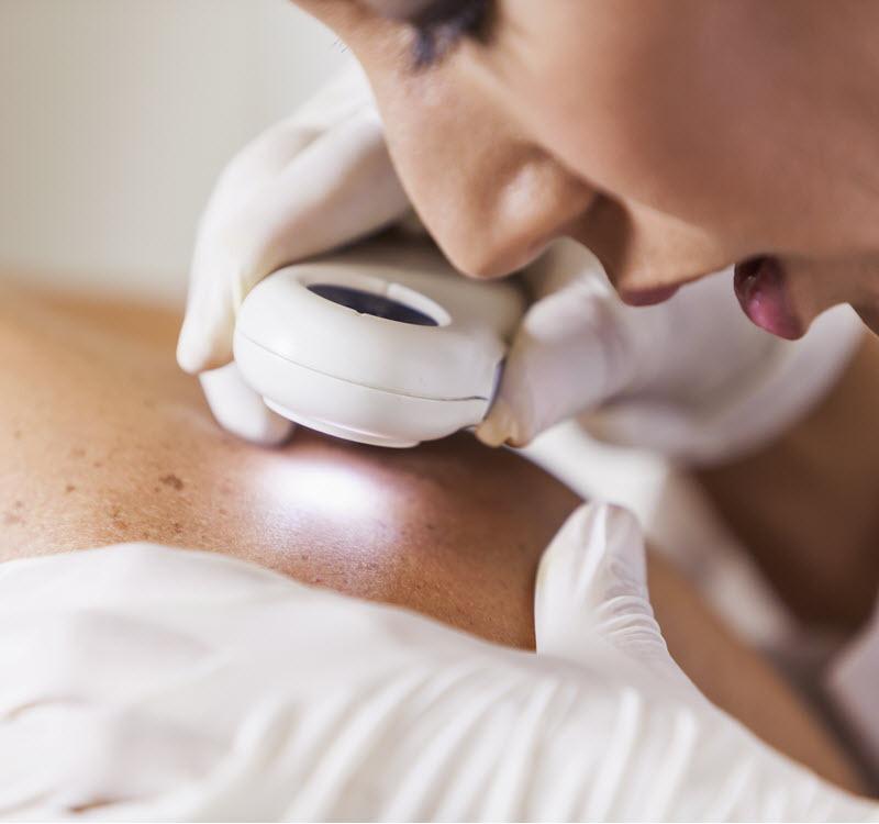 skin inspection